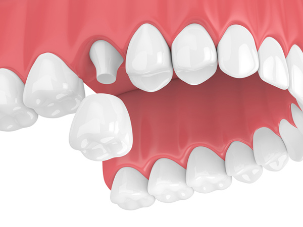 Rendering of jaw with a porcelain dental crown from Tigard Family Dental