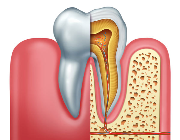 Diagram of tooth showing a tooth root in need of root canal therapy from Tigard Family Dental in Tigard, OR