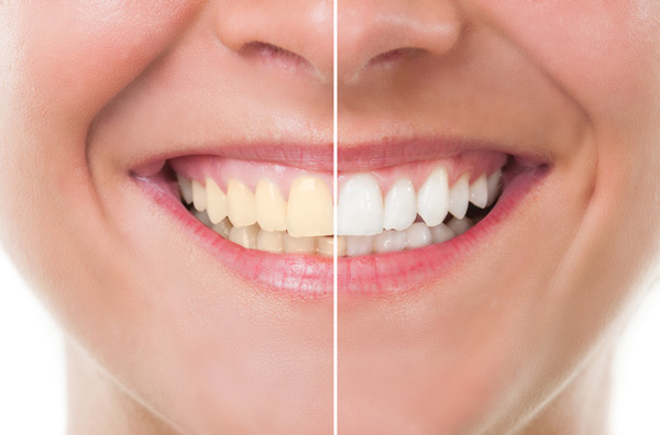 Before and after photo of teeth whitening treatment at Tigard Family Dental in Tigard, OR